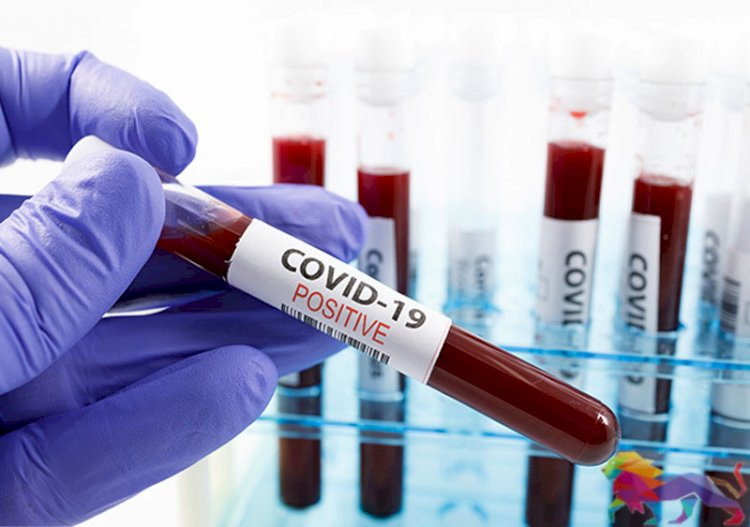 Sri Lanka detects cluster of 296 COVID-19 cases on Friday